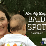 How My Baby's Bald Spot Changed Me