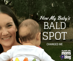 How My Baby's Bald Spot Changed Me :: RGV Moms Blog