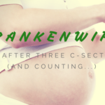 FrankenWife: Life after three c-sections…and counting!